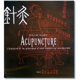 Acupuncture. L'Histoire et...